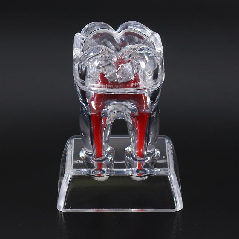 Large Tooth Molar Model Separable Teaching Demonstration Model Transparent Dentistry Material Dental Lab Teeth Model