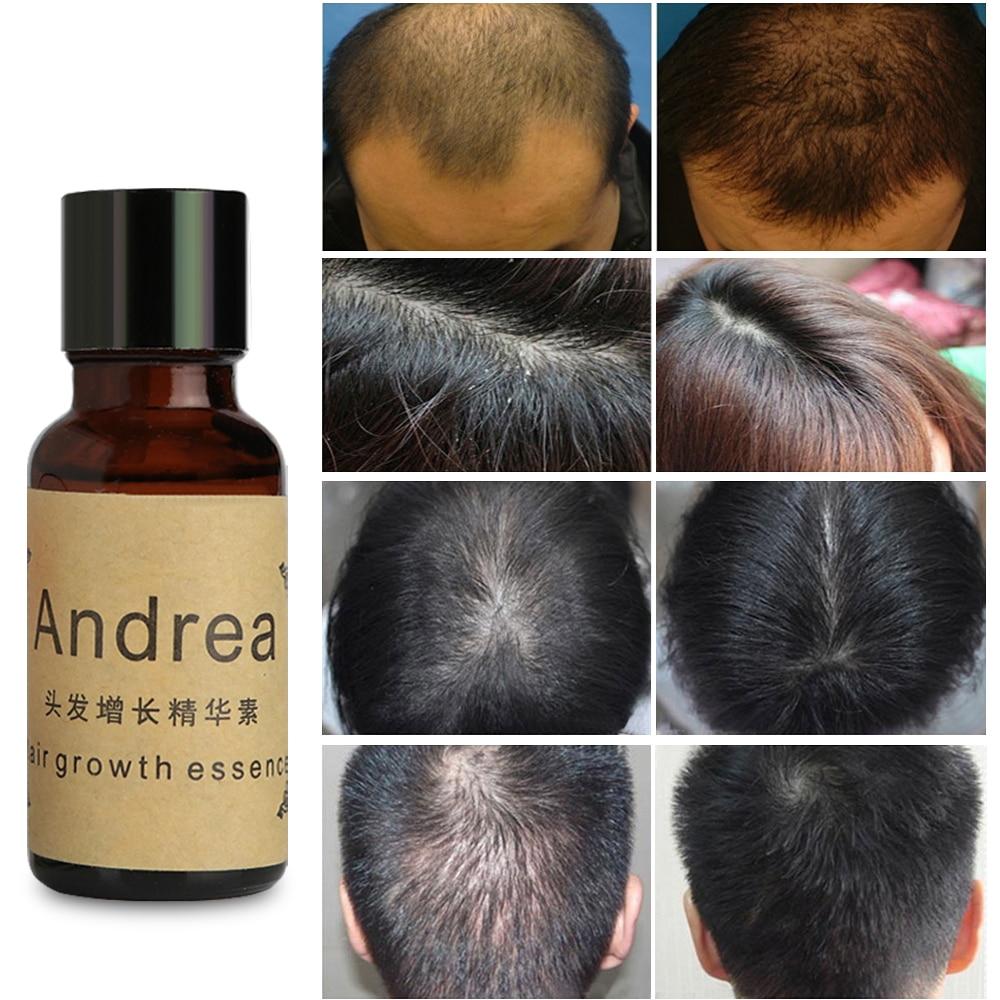 Andrea Hair Growth Essence Hair Loss Liquid Restoration Growth Essence 20ml dense hair 1 pcs free shipping