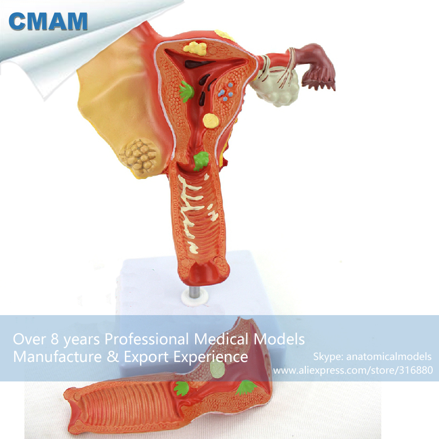 12473 CMAM-ANATOMY35 Female Uterine Ovarian Vaginal Disease Medical Model , Medical Science Teaching Anatomical Models 12410 cmam brain12 enlarge human brain basal nucleus anatomy model medical science educational teaching anatomical models