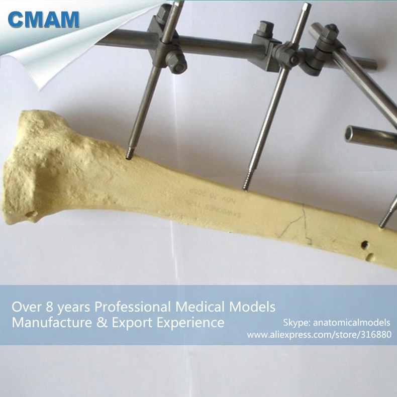 12319 CMAM-TF08 Solid Foam Normal Anatomy Tibia With No Block, Medical Science Educational Teaching Anatomical Models cmam a29 clinical anatomy model of cat medical science educational teaching anatomical models