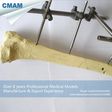 CMAM-TF08 Solid Foam Normal Anatomy Tibia With No Block,  Medical Science Educational Teaching Anatomical Models