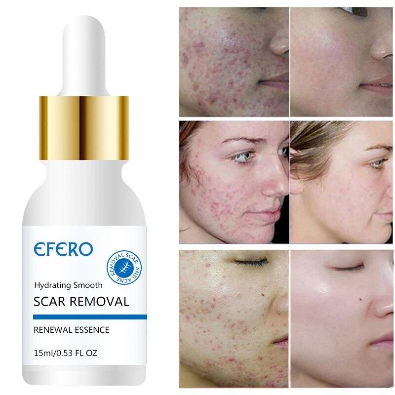 Image 5 - Hyaluronic Acid Argireline Collagen Peptides Whitening Cream Moisturizing Anti aging Wrinkle Essence Scar Remove Serum Face Care-in Serum from Beauty & Health