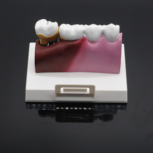 Image 5 - Dentist Lab Soft Gum Teeth Model Teeth Replacement For Study Student Practice