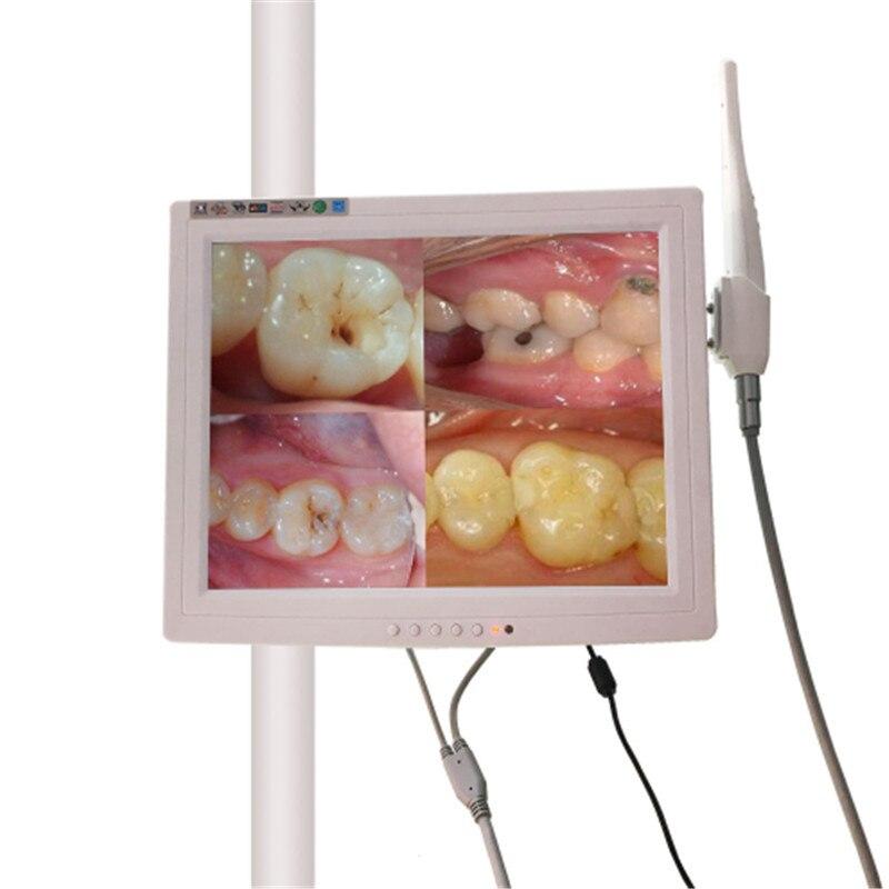 A0003 avec un moniteur de 15 pouces VGA caméra intra-orale Endoscope Endoscope 6 lumière LED dentiste caméra caméra dentaire odontologia