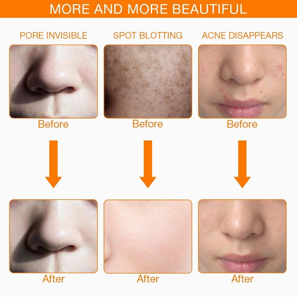 Más de 3/7 colores de fotones eléctrica LED máscara Facial con cuello de rejuvenecimiento de la piel Anti acné arrugas, tratamiento de belleza salón de uso en el hogar - 4