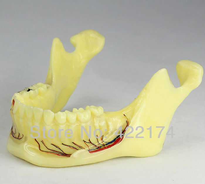 Free Shipping Pathologies of the lower jaw model dental tooth teeth dentist anatomical anatomy model odontologia free shipping 2times adult pathologies model dental tooth teeth anatomical anatomy model odontologia