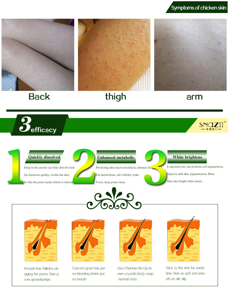 Healthy Skin Care Treament Chicken Skin Repair Remove Dead Skin Goose Bumps Pimples Foliculitis Whole Body Whitening Soap 40g 3