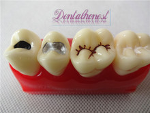 Dental Pit and Fissure Sealing Treatment Teeth Tooth Study Learn Model