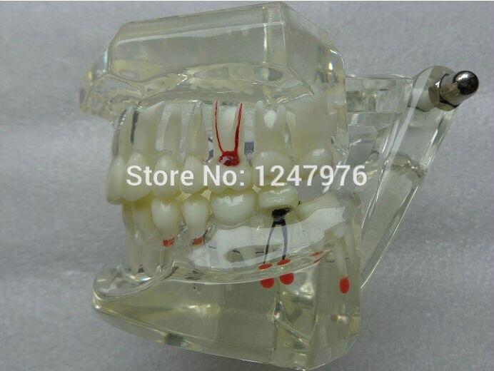 Modèle de pathologie dentaire complet modèle pathologique nouveau modèle mathématique des dents