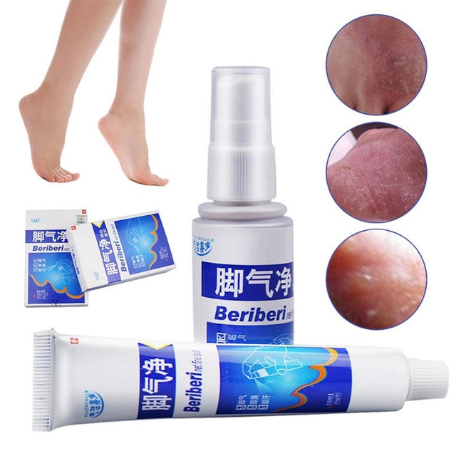 US $3 74 |1 Set Remover Feet Deodorant Spray With Ointment Cream Natural  Herbal Formula Remove Foot Odor Anti Fungal Infection-in Feet from Beauty &