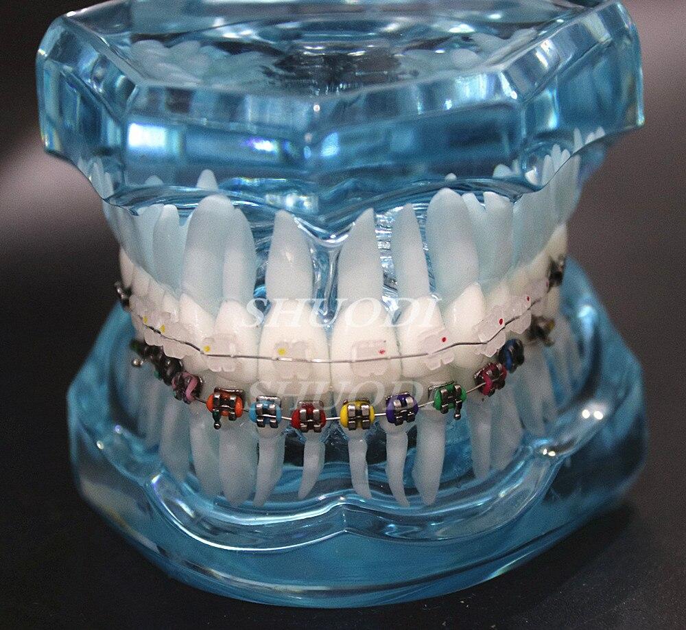 Dental Orthodontic Model Patients Communication 2 kinds Brackets with Archwires Ligatures Ceramic Bracket Metal Bracket