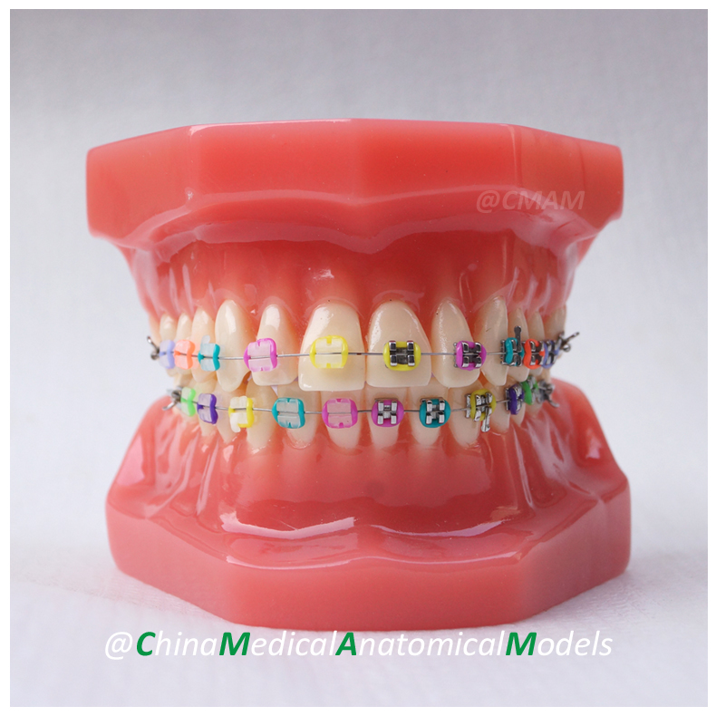 DH206-2 Dentist Patient Communication Oral Dental Ortho Metal and Ceramic Model, China Medical Anatomical Model developing oral communication materials for thai immigration officers