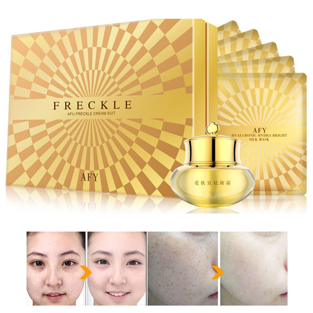 Strong Effects Powerful Whitening Freckle Cream Remove Melasma Acne Spots Pigment Melanin Face Care Cream Anti Wrinkle Aging