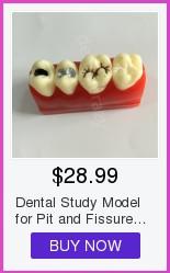 Alta qualidade dental m8017 typodon dentes modelo ortodôntico steelteeth modelo