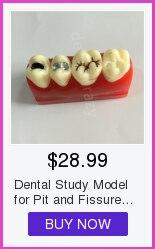implante com ponte da restauração dentista do