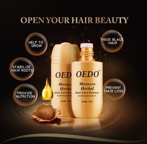 Image 5 - מרוקו שיער צמיחת מהות שמן מניעת נשירת שיער לקדם שיער עבה מהיר חזק צמיחה תיקון שיער שורש 30ml TSLM2