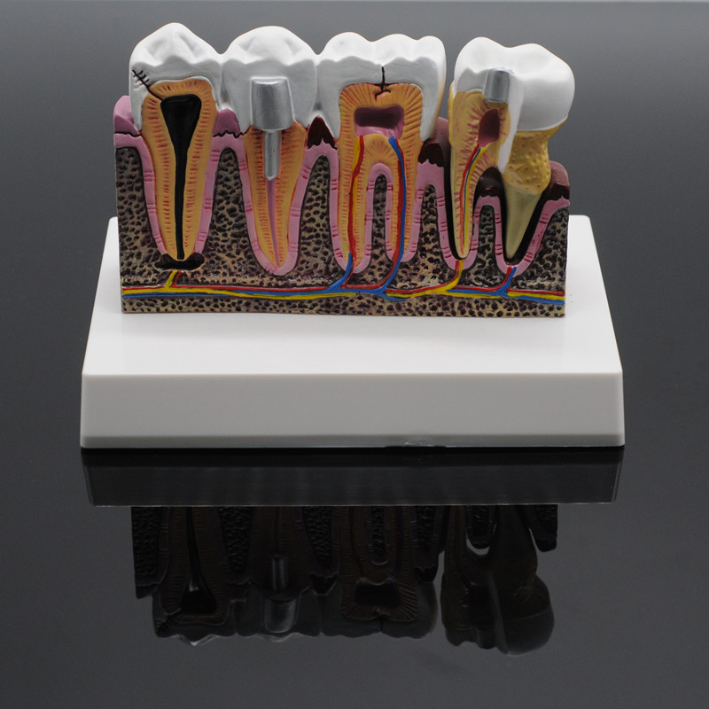 Image 3 - Dentist Lab Soft Gum Teeth Model Teeth Replacement For Study Student Practice-in Teeth Whitening from Beauty & Health
