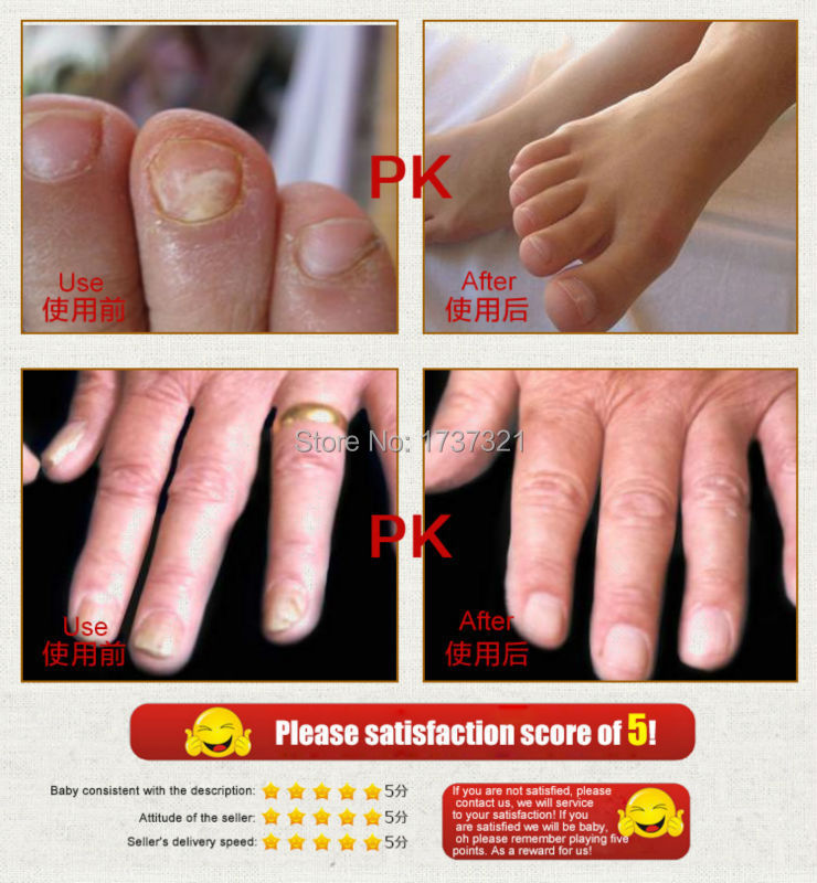Profession Cuticle Oil Fungal Nail Treatment Feet Care Manicure Clean Onychomycosis Remover Revitalizer Sterilizer In Treatments From