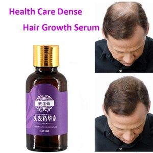 Image 2 - 부작용없이 자연적인 탈모 제품은 머리 빠른 재성장 머리 성장 제품을 성장합니다