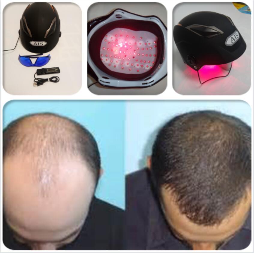 anti hair loss hair loss treatment hat
