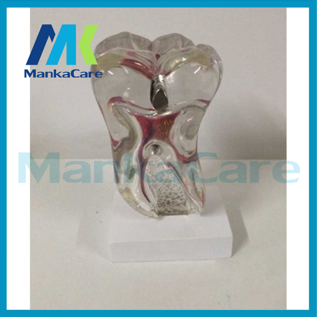 Manka Cuidar-Anatomia odontologia Estudo Patológico Doença Dente Dentes Modelo Anatômico esqueleto Humano para venda