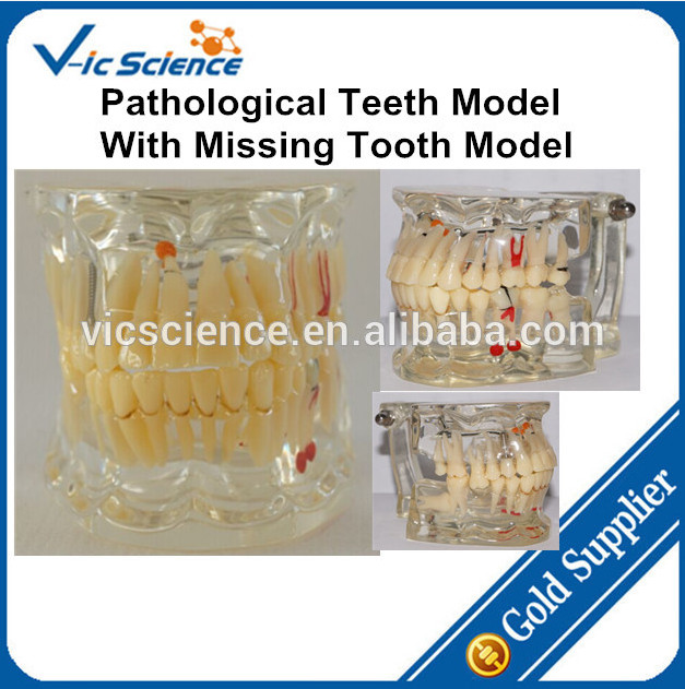 Dental Tooth Model/Pathological Teeth Model With Missing Tooth Model,Typodont Model 2016 dental orthodontics typodont teeth model half metal half ceramic brace typodont with arch wire