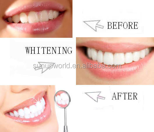 Free shipping!!! with led lights teeth whitening kit dental whitening gel kit clareador dental