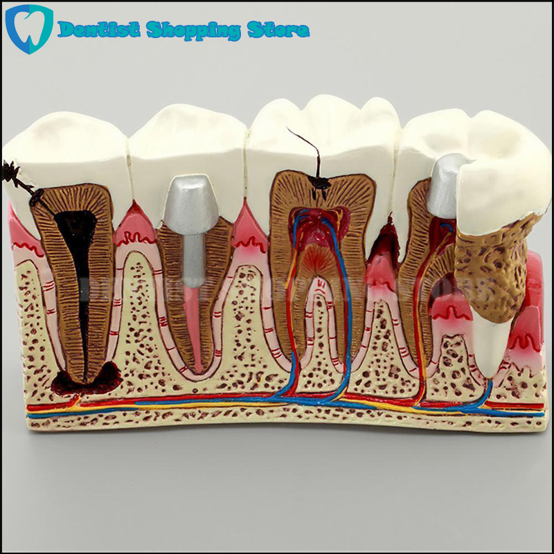 High Quality Caries Tooth Model Dentist Patient Communication Anatomy Model Dentistry Rich Details Teaching Aids Equipment soarday children primary teeth alternating transparent model dental root clearly displayed dentist patient communication