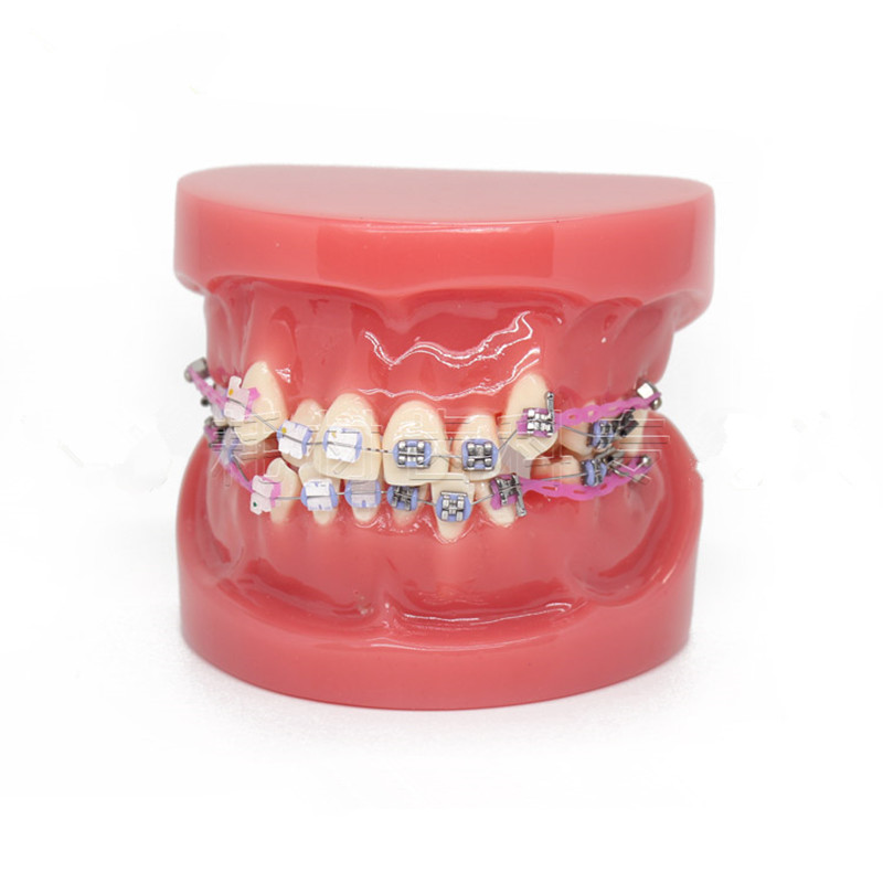 New Dental Orthodontic Treatment Malocclusion Model With Ceramic Brackets Chain Wire For Medical Science Teaching 2018