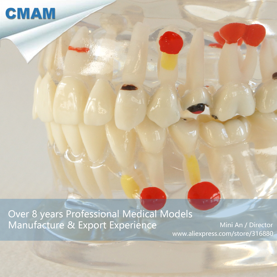 ФОТО CMAM-DH303 Adult Dental Pathology Model with Half Side Removable for Patient Education
