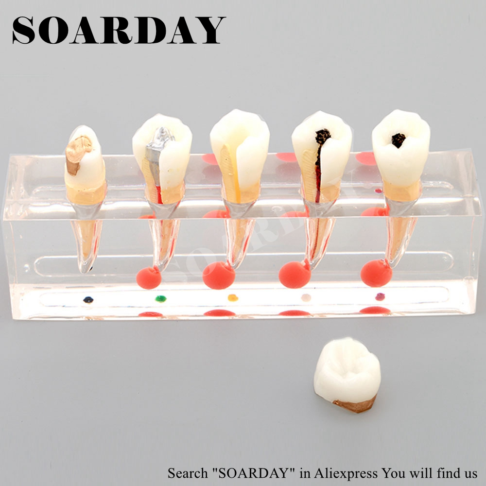 SOARDAY Endodontic Disease Model Dental Teaching Model Oral Dentistry Dentist Communication Model teeth model blue dental orthodontics communication model with 4 types of brackets