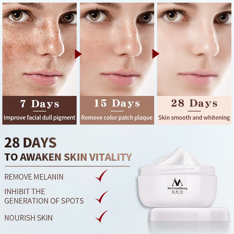 Strong Effects Powerful Whitening Freckle Cream 40g Remove Melasma Acne Spots Pigment Melanin Whitening Moisturizing Skin Care 2