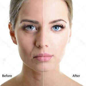 Image 2 - スキンスクラバー超音波顔スキンスクラバー顔クリーナー剥離振動にきび除去剥離細孔クリーナーツール