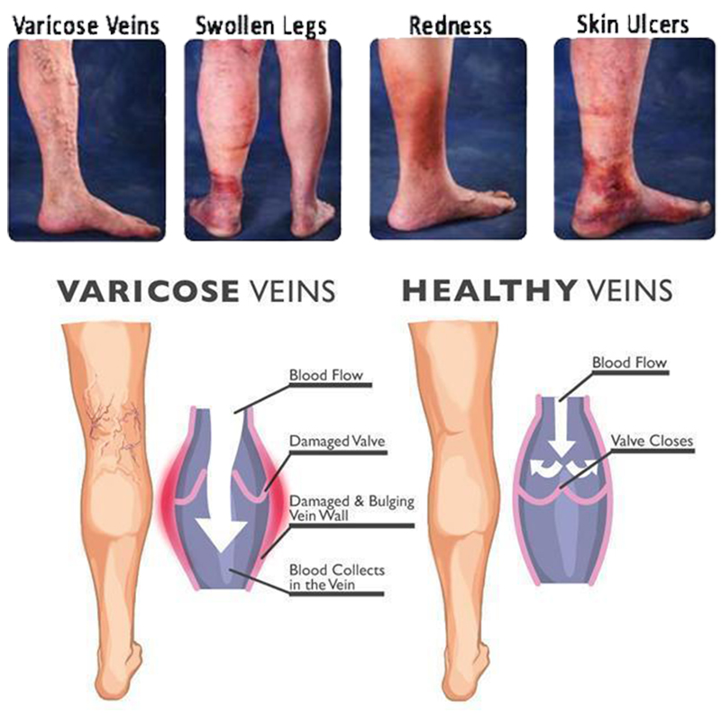 Varicose Vein Ginger Oil Therapy Lymphatic Drainage Ginge Oil