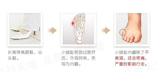 средства ухода за кожей стоп уход ноги про ноги orthopedic на Burst гель большого пальца стопы сепаратор небольшой носок облегчает боли подушки 1 пара = 2 шт