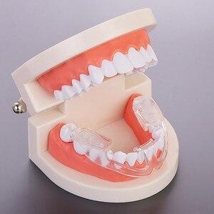 1Pcs Anti Teeth Grinding Molar