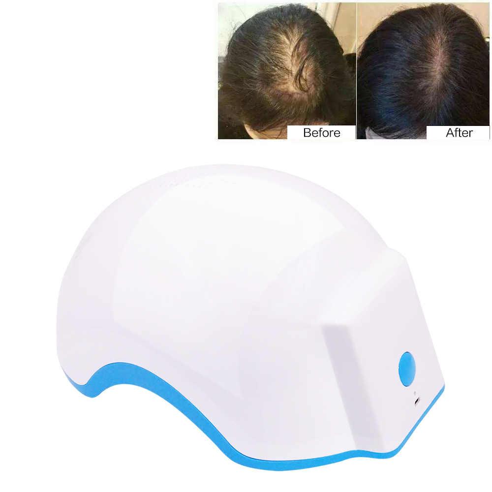 Dei Capelli del Laser Sistema di Crescita Prodotti contro la perdita dei capelli Terapia Della Luce A Infrarossi Dispositivi Ricrescita Dei Capelli per Gli Uomini Le Donne Laser Casco Pettine Cap