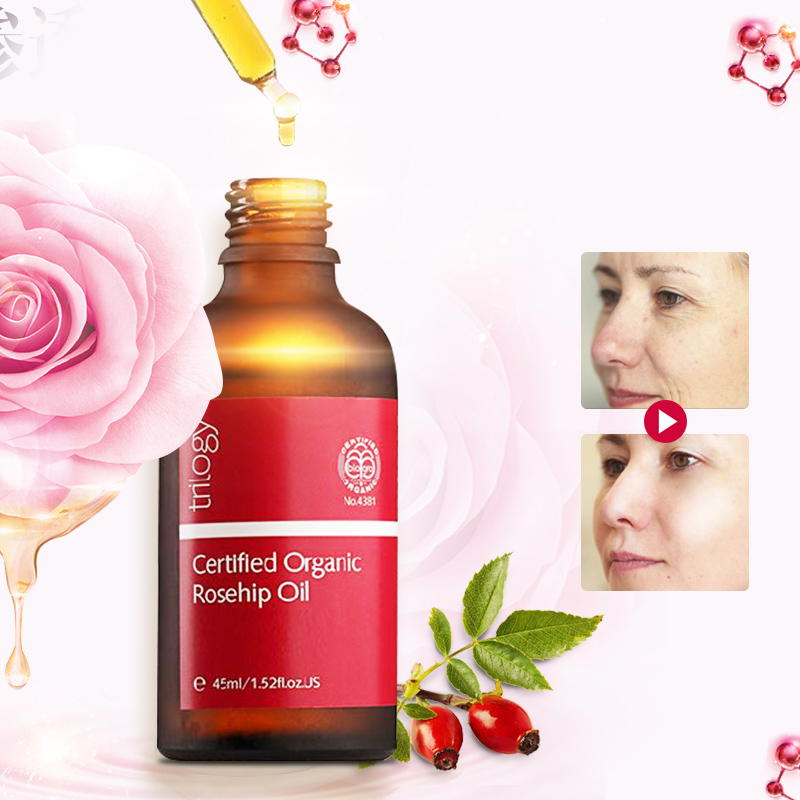 100 Original NewZealand Trilogy Certified Organic Rosehip Oil for Scars Fine lines Wrinkles Stretch marks Dehydrated