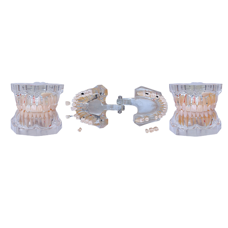 1pc Dental study mode 2.5 Times Sized Giant Transparent Pathology Teaching Teeth Model with Removable Tooth transparent dental orthodontic mallocclusion model with brackets archwire buccal tube tooth extraction for patient communication