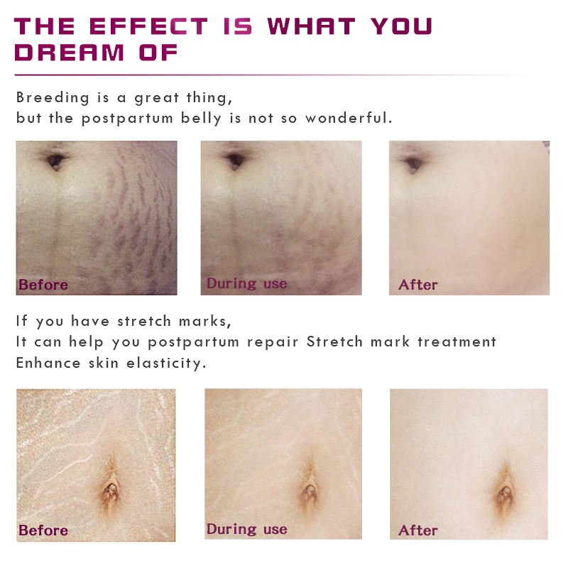 Mango Remove Pregnancy Scars Acne Cream Stretch Marks Treatment 2
