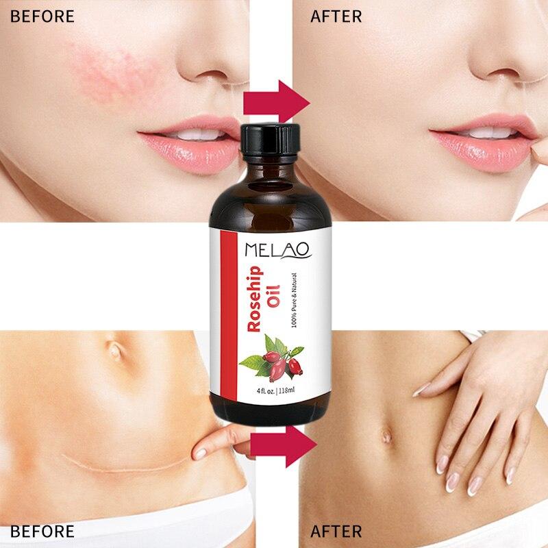 MELAO 100% Pure Organic Rosehip Oil Moisturizer Heal Dry