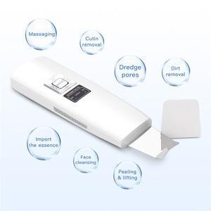 Image 2 - USB Rechargeable Ultrasonic Vibration Skin Scrubber Face Skin Peeling Extractor Acne Blackhead Remove Exfoliating Scraper Shovel