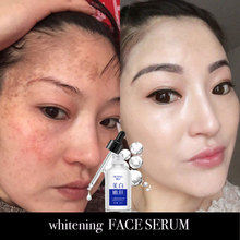 30ML whitening FACE serum facial skin vitamin c care female beauty products korea focallure