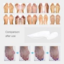 1Pair Orthopedic Hallux Valgus Pro Bunion Corrector Toe Separator Stretchers Bunion Protector Pedicure Tool Silicone Feet Care