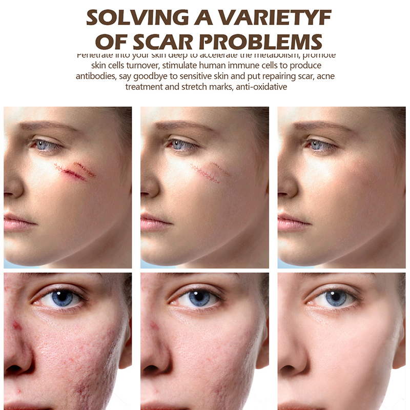 Repair Scar Cream Removal Scars For Face Or Body Pigmentation Corrector Scalded Surgery Scar Insect Bites Mark in Facial Self Tanners Bronzers from Beauty Health