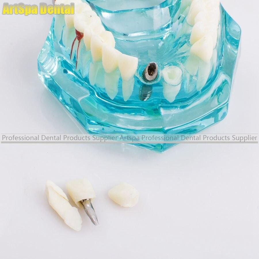 Modèle dentaire d'étude dentaire modèle de dents d'enseignement pathologique adulte - 3