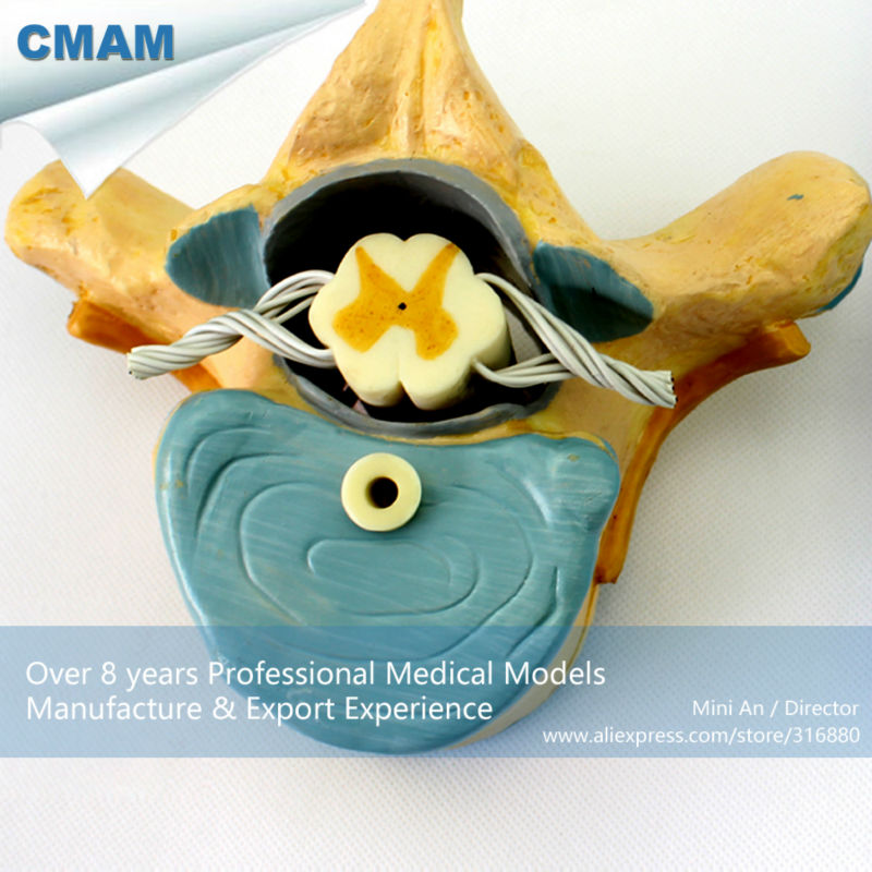 12395 CMAM-VERTEBRA11 Thoracic Vertebrae with Spinal Cord(medical model, anatomical model) 12338 cmam pelvis01 anatomical human pelvis model with lumbar vertebrae femur medical science educational teaching models