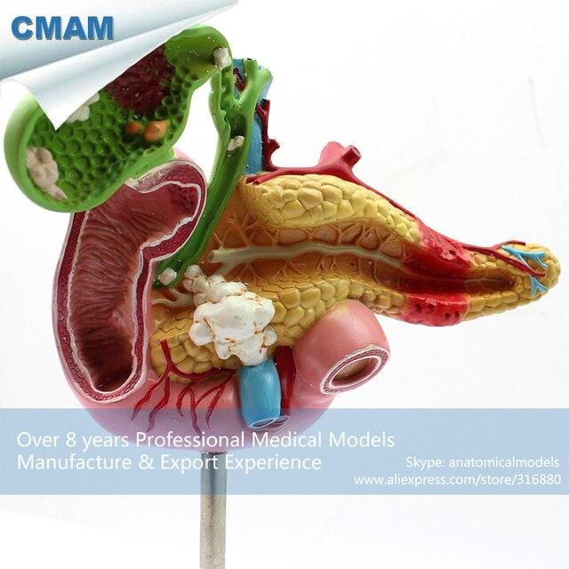12541 CMAM VISCERA04 Ciencia Médica Modelo Patológico del Páncreas ...