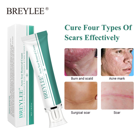Whitening Cream Breylee Acne Scar Removal Cream 30g Face In Pakistan Usa Imported Products Uk Products And Japani Products For Sale In Pakistan Electronic Products