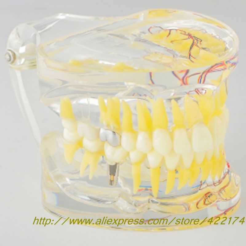 Dental Adult pathological model With tooth nerve With inlay restoration soarday tooth root canal restoration model oral dental training materials tooth nerve model